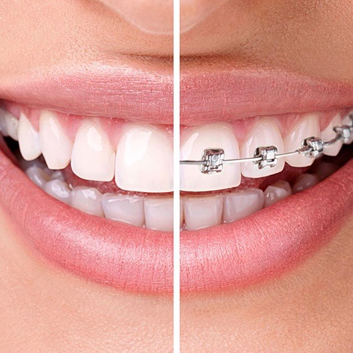 Invisalign vs Braces Dental Lounge