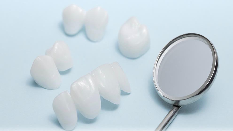 Zahnprothetik bei Dental Lounge Zürich Bellevue