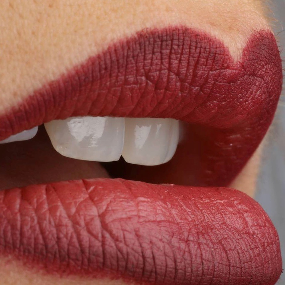 Ästhetische Zähne bei Dental Lounge am Bellevue in Zürich